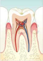 むし歯 C0